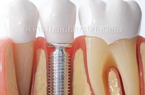 انواع ایمپلنت دندان